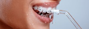 Dental Flossing, Why Is It Important For You